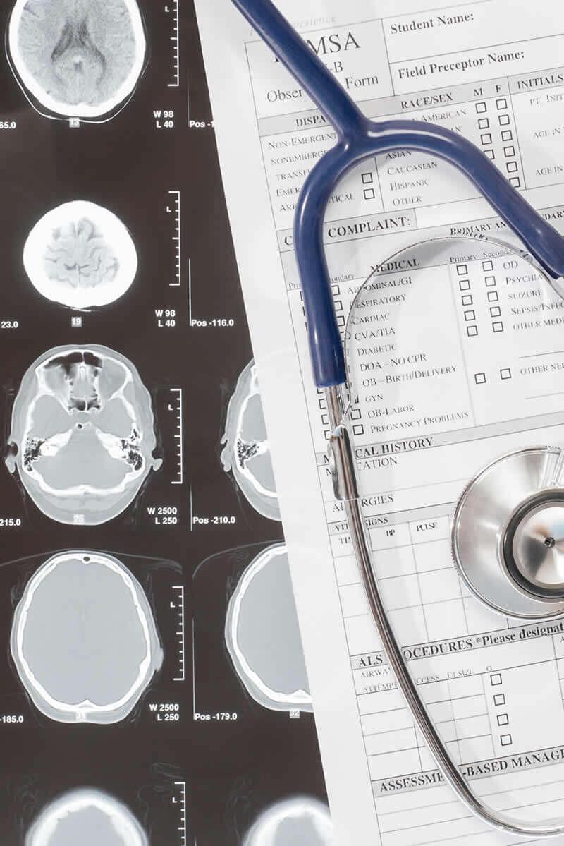 Brain injury Medical Claim