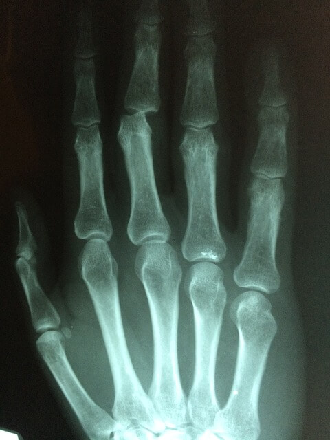 Delay in removing K wires causes limited hand mobility