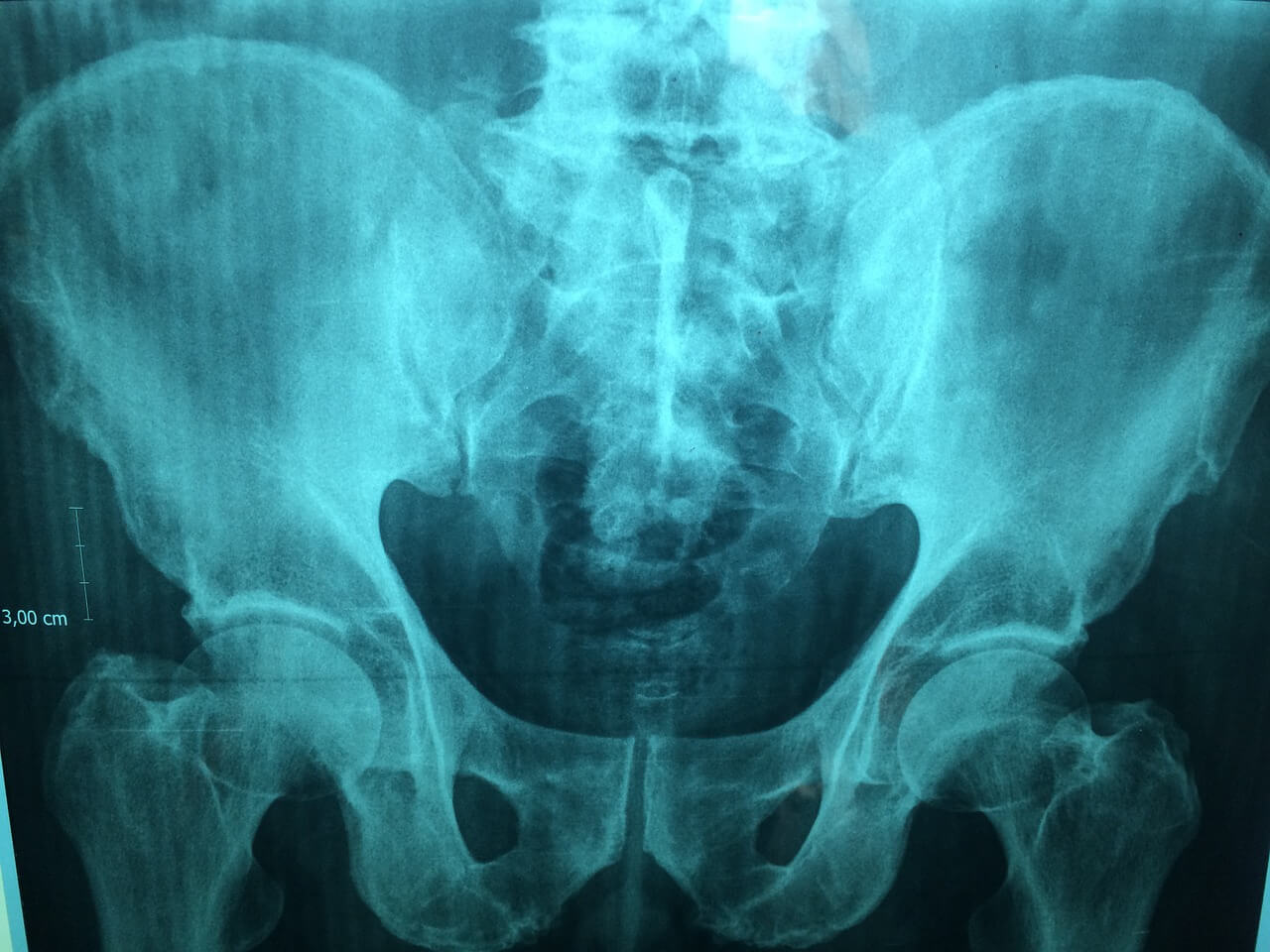 Broken pelvis caused by accident at work