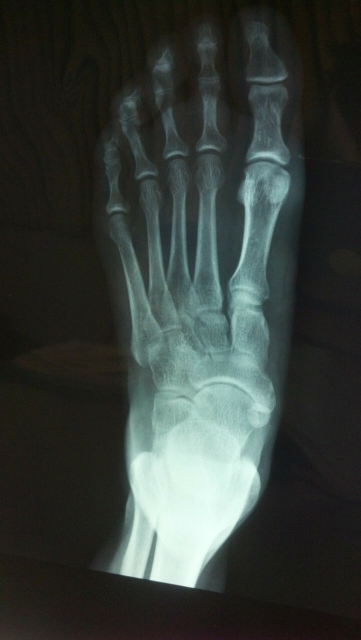 lisfrank injury xray